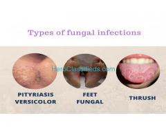 Fungal Infection Treatment in Gurgaon
