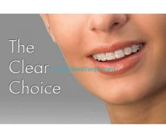 Invisalign Clinic in Gurgaon