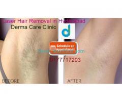 Famous Laser Hair Removal in Himayat Nagar | Laser Hair Removal in Hyderabad | DermaCareClinic