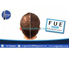 hair fall solution in hyderabad | hair growth treatment